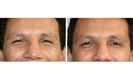 3-botox-antes-despues.jpg