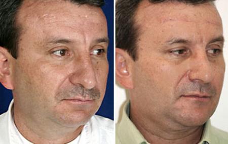 3-cirugia-papada-antes-despues.jpg