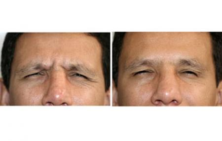 4-botox-antes-despues.jpg