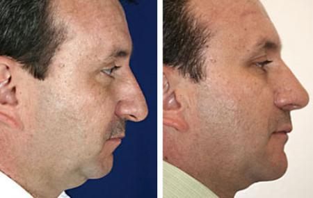 4-cirugia-papada-antes-despues.jpg